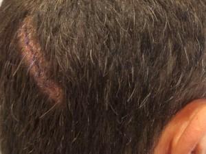 Bobard par atténuation : les « légères douleurs » des militants FN